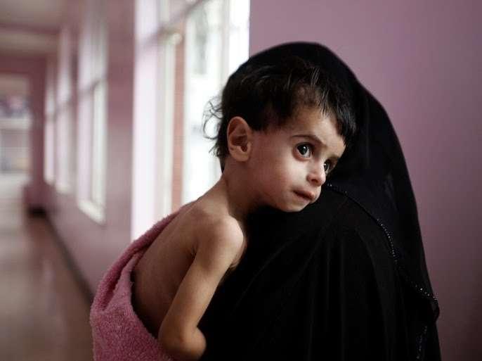 تحذيرات دولية من إرتفاع معدلات سوء التغذية بين الأطفال اليمنيين